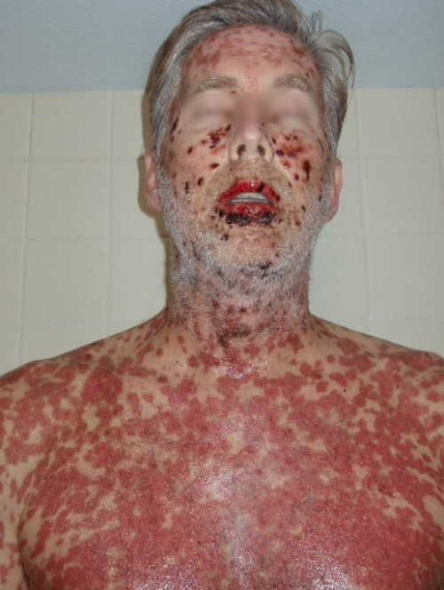 Stevens-Johnson syndrome Rash Pictures Atlas of Rashes Associated With Fever Stevens- Johnson Syndrome image photo