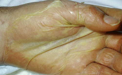 Streptococcal Toxic Shock Syndrome Rash Pictures Atlas of Rashes Associated With Fever Desquamation in palm due to toxic shock syndrome photo image