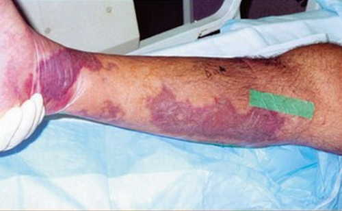 Streptococcal Toxic Shock Syndrome Rash Pictures Toxic shock syndrome rash on leg image photo