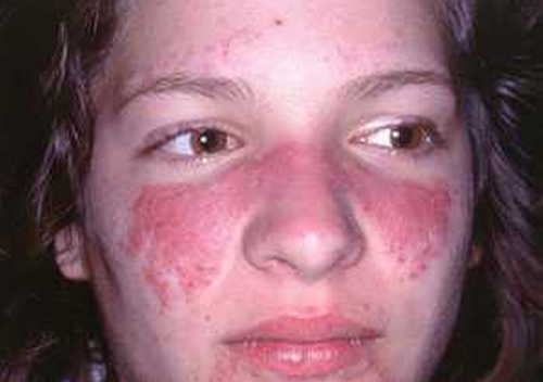 Systemic Lupus Erythematosis (SLE) Rash Pictures Atlas of Rashes Associated With Fever 'Butterfly rash' is Systemic lupus erythematosis photo image