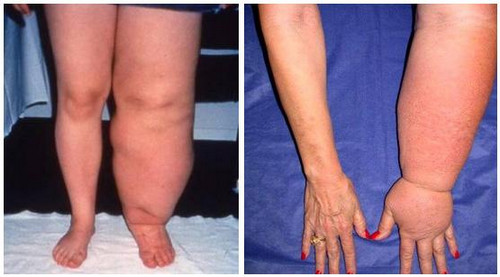 The patient with one-sided edema of the upper and lower extremities photo