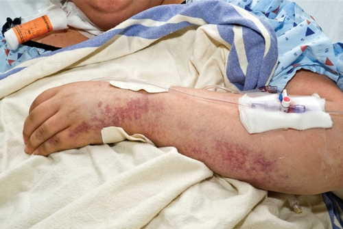 Thrombotic thrombocytopenic purpura (TTP) Rash Pictures Atlas of Rashes Associated With Fever Thrombotic thrombocytopenic purpura in a pregnant lady photo image