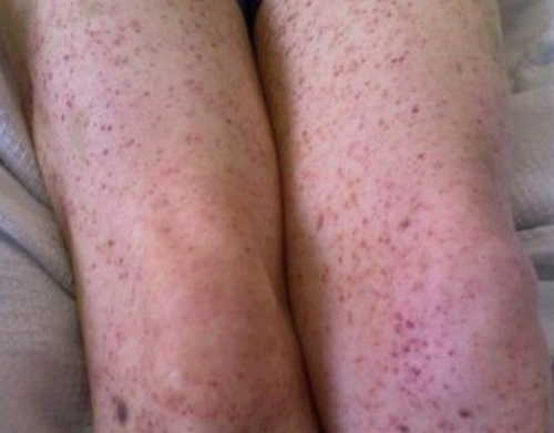 Thrombotic thrombocytopenic purpura (TTP) Rash Pictures Atlas of Rashes Associated With Fever Thrombotic thrombocytopenic purpura photo image