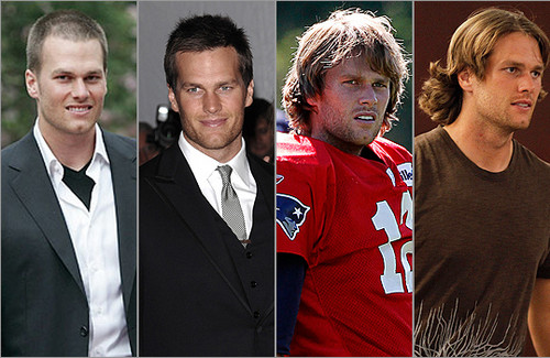 Tom Brady's before and after hair transplant look picture