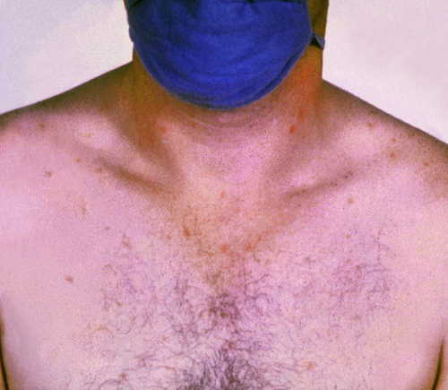 Typhoid fever Rash Pictures Atlas of Rashes Associated With Fever Typhoid fever- Rose spots image photo