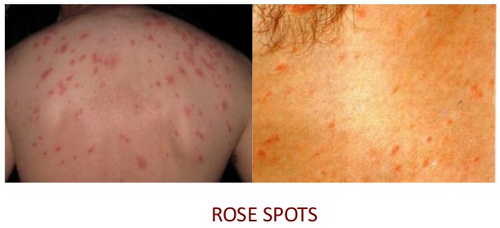 Typhoid fever Rash Pictures Atlas of Rashes Associated With Fever Typhoid fever- Rose spots image photos