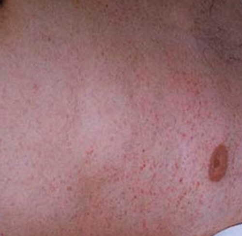 Typhus Fever Rash Pictures Atlas of Rashes Associated With Fever Epidemic Typhus fever rash image picture photo