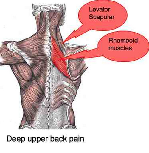 Upper back pain specifically in the scapular area pictures