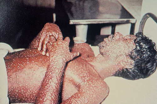 Variola (small pox) Rash Pictures Atlas of Rashes Associated With Fever Small pox image photo