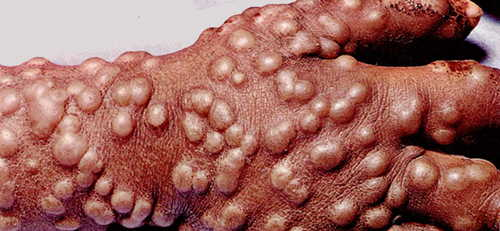 Variola (small pox) Rash Pictures Atlas of Rashes Associated With Fever Small pox rash image photo