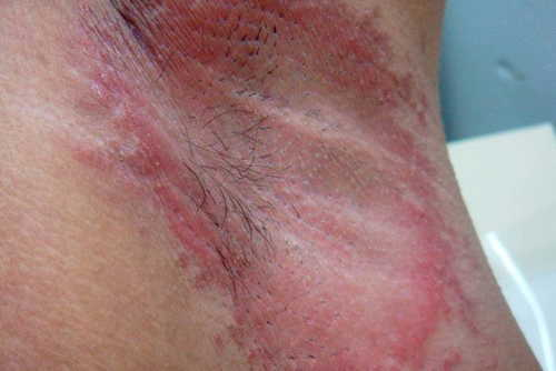 Yeast infection Rash Pictures Atlas of Rashes Associated With Fever Candida infection- Underarm photo image