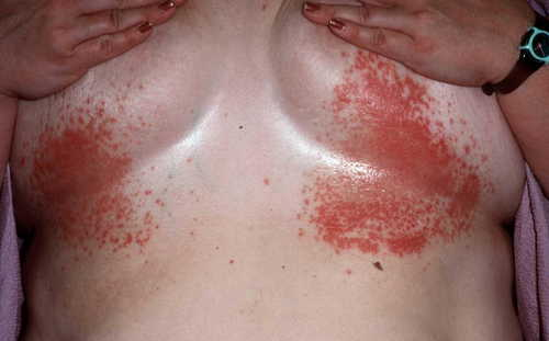 Yeast infection Rash Pictures Atlas of Rashes Associated With Fever Candida infection under the breasts image photo