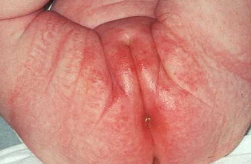 Yeast infection Rash Pictures Atlas of Rashes Associated With Fever Diaper Rash image photo