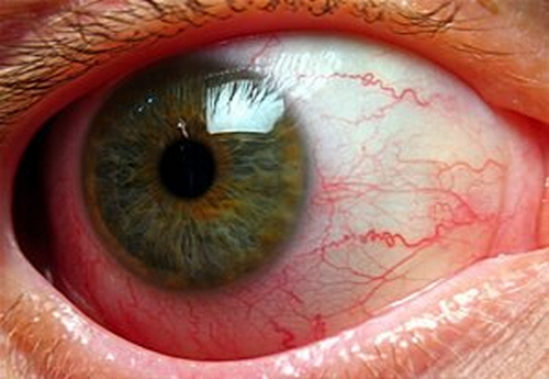 A close up view of the patient's eye infected with iridocyclitis image photo picture