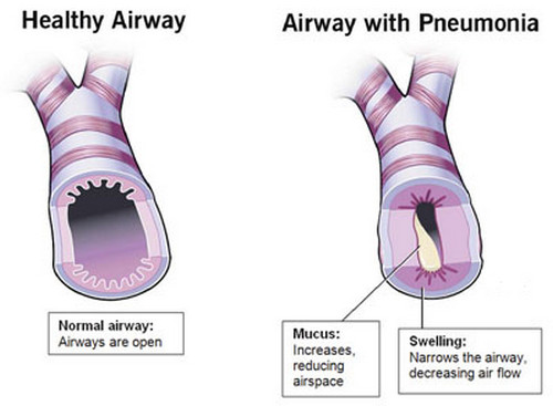 A comparison image between a healthy airway and an airway with pneumonia Pneumonia picture