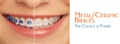 A comparison image between a metal brace and a porcelain brace Porcelain Braces image picture photo
