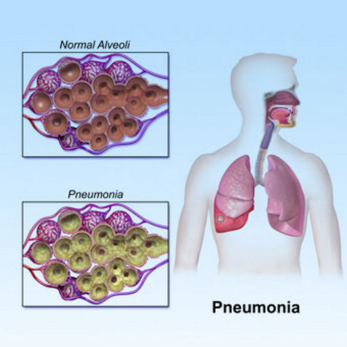 A normal alveoli and an alveoli with pneumonia Image