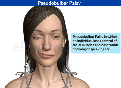 A typical clinical manifestation of a patient with bulbar palsy image photo picture