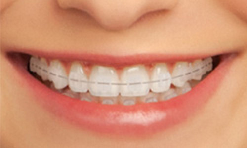 Ceramic braces look like a retainer porcelain brace image picture photo