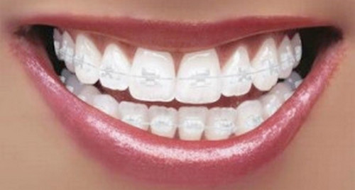 Porcelain braces have the same color as the teeth making them less visible picture photo image