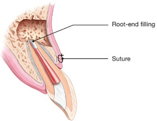 The figure shows a root-end resection procedure or popularly known as apicoectomy image photo picture