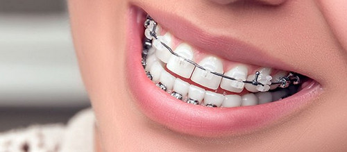 The patient has a porcelain brace on the upper teeth and metal brace on the lower teeth. A metal wire is attached to the brackets image picture photo