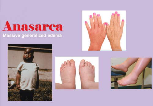 The classic signs and symptoms of anasarca image photo picture