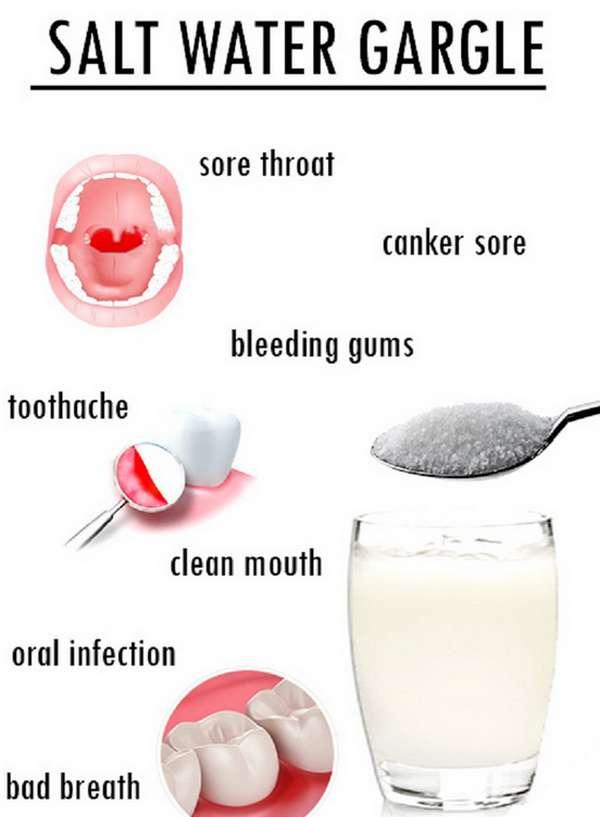 gargarejo é um dos remédios caseiros mais baratos para foto de imagem herpes oral &quot;width =&quot; 398 &quot;height =&quot; 542 &quot;/&gt;</p><p style=