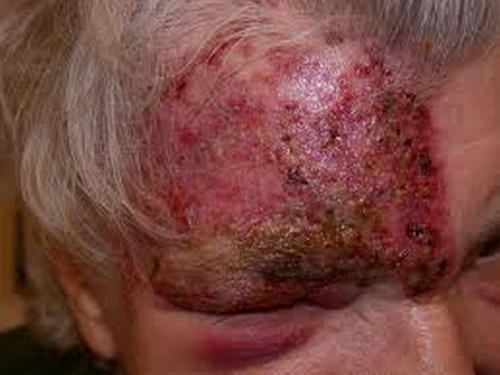 A severe skin lesion on the patient's face image picture photo