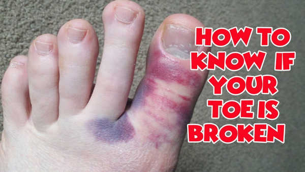 how to fix dislocated big toe