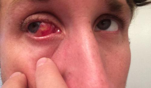 Une image de la photo d&#39;un patient après une chirurgie du ptérygion &quot;width =&quot; 413 &quot;height =&quot; 241 &quot;/&gt;</p><p style=